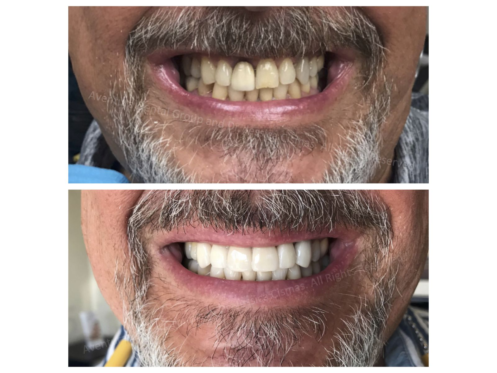 Dr. Jessica Cismas from Aventura Dental Group just completed another full mouth porcelain veneer case sucessfully. At Aventura Dental Group we pride ourselves with building amazing long lasting smiles for lifetime. If you need a second opinion consultation please DM us @aventuradentalgroup on Instagram.