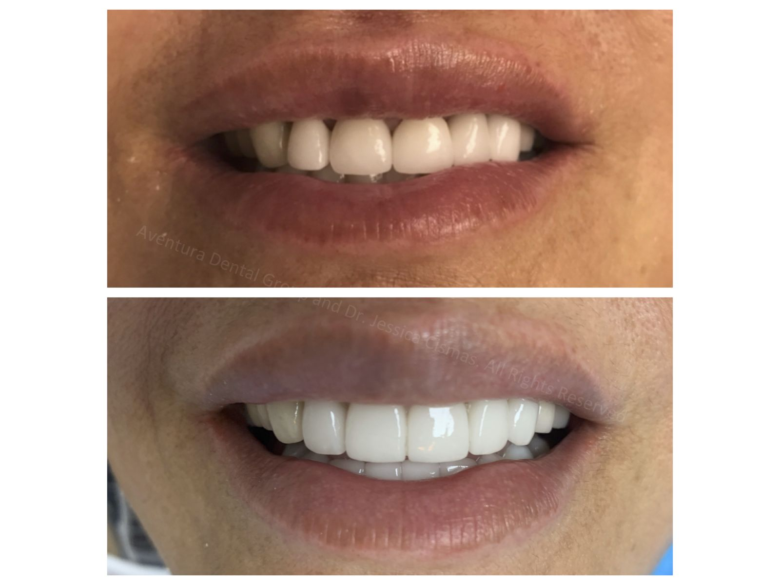 Dr. Jessica Cismas outdid herself again with another full mouth porcelain veneer case. She created a long lasting beautiful smile for this patient who absolutely loved the way her teeth look now. For a limited time Dr. Jessica Cismas will provide cosmetic consultations to the first 50 patients.