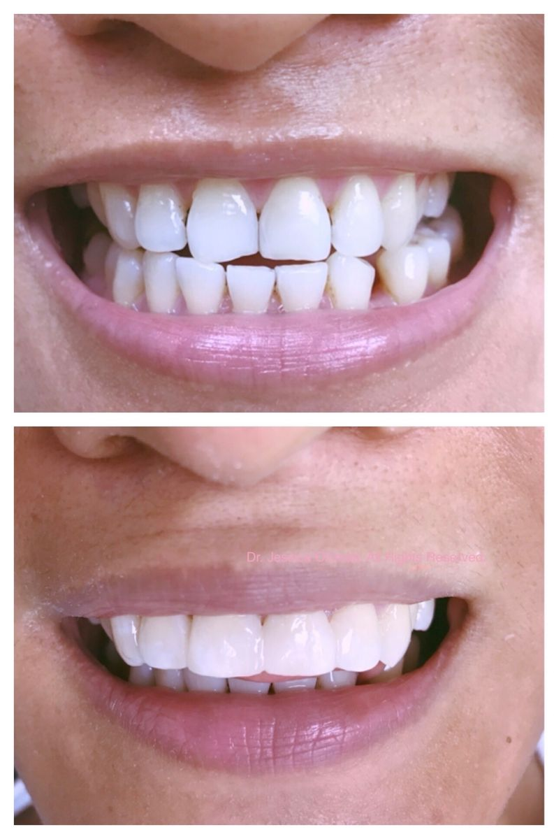 Aventura Dental Group specializes in full mouth aesthetic dental treatments including porcelain veneers, implants and many more. DM us for a cosmetic consultation.