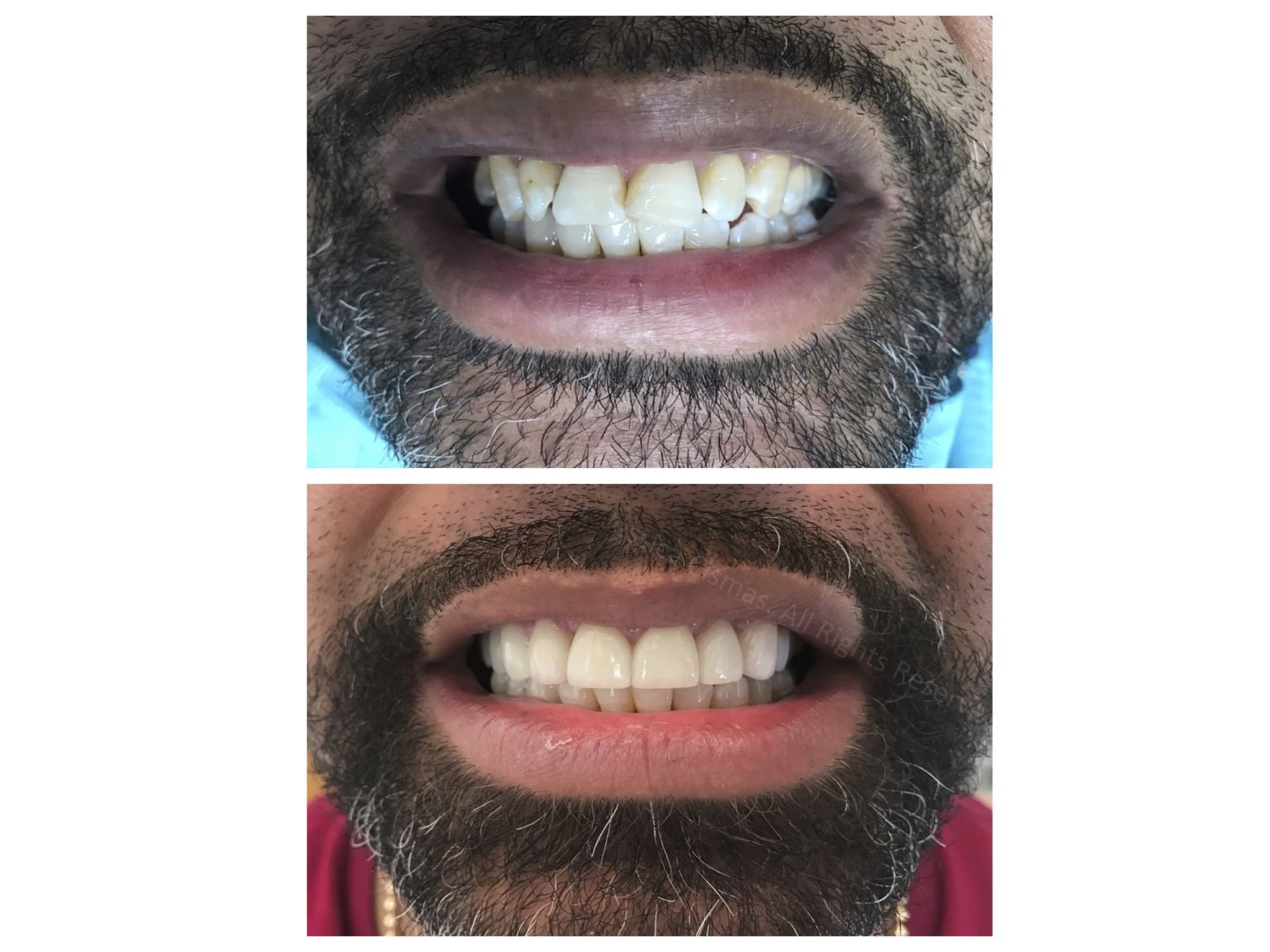 Porcelain veneers for this gentleman , makes all the difference. Dr. Jessica Cismas managed to create a unique look with natural looking porcelain veneers. For a limited time she offers complimentary consultations.