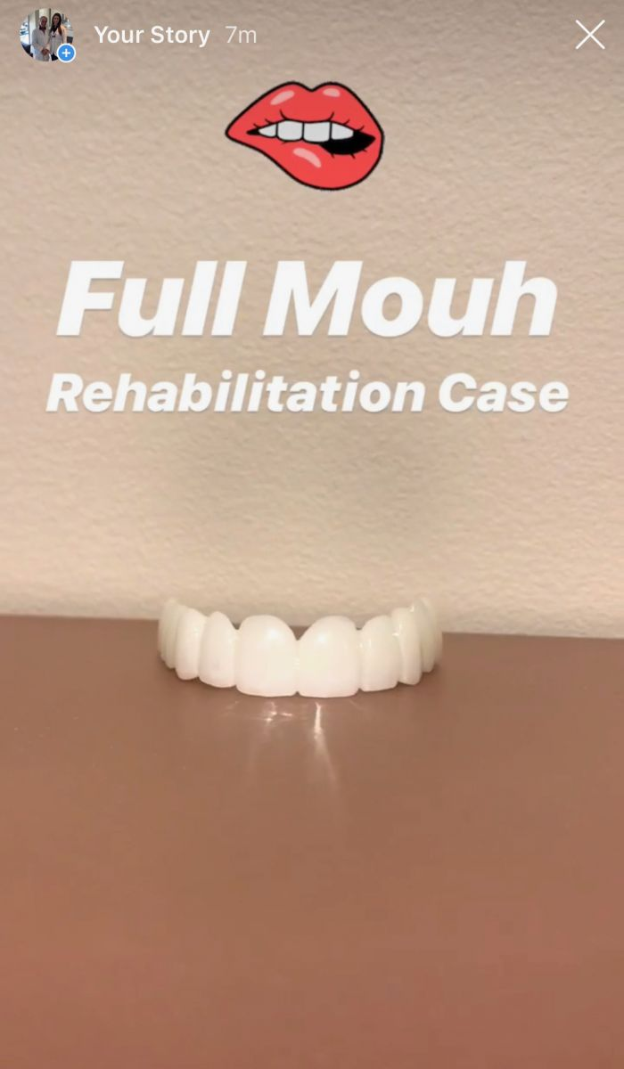Aventura Dental Group is your final destination for complex full mouth reconstruction and rehabilitation in Aventura, Miami, South Florida. You just found one of the best porcelain veneer dentist in Aventura Florida.