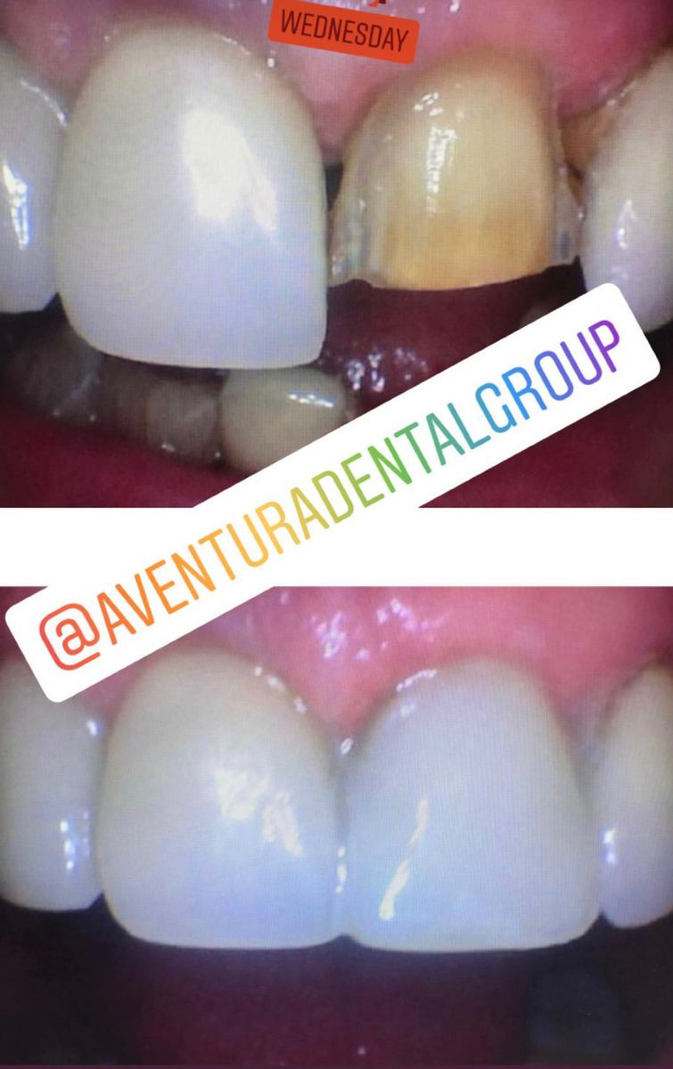 Same day emergencies can be very stressful. Dr. Jessica Cismas from Aventura Dental Group made this temporary veneer that will last for a very long time. We specialize in porcelain veneers, same day temporary veneers, cosmetic veneers and many more cosmetic procedures at our Aventura dental practice.