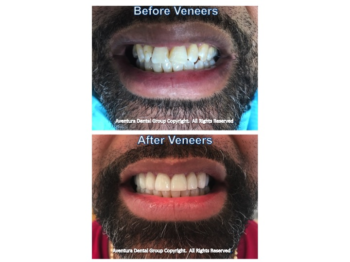 Aventura Dental Group Before and After Full Mouth Cosmetic Veneers Rehabilitation done by Dr. Jessica Cismas at the # 1 Cosmetic Dental Practice in Aventura FL.